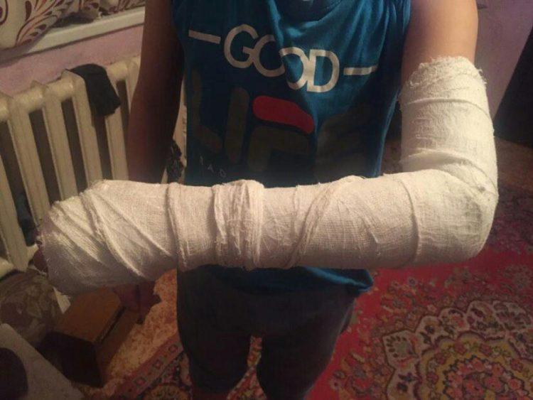 Руку сломал ученику седьмого класса одноклассник в Карагандинской области 1