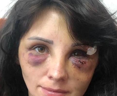 """""""Бил до потери сознания, приводил в чувство и продолжал"""": Астанчанин истязал и похитил бывшую жену 1"""