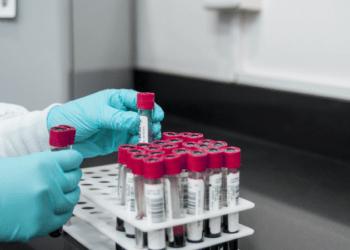Сколько тестов на коронавирус проводится посуточно в Казахстане? Ответ Минздрава 1