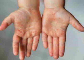 На информацию о вспышке синдрома Кавасаки в Казахстане ответил Минздрав 3