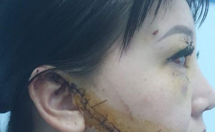 Суд над домашним тираном в Актобе: женщина простила экс-супруга, изрезавшего ей лицо 1