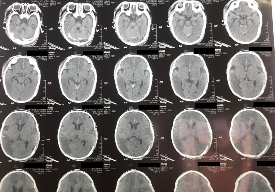 У двухмесячного младенца случился инсульт в Мангистау 1