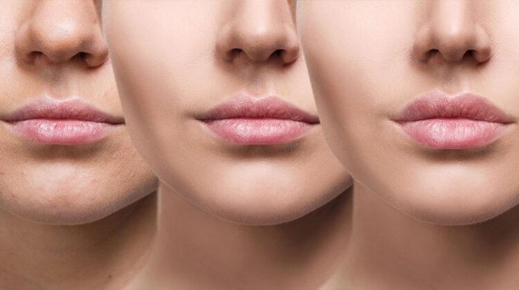 Фото: DermaWorld skin clinic