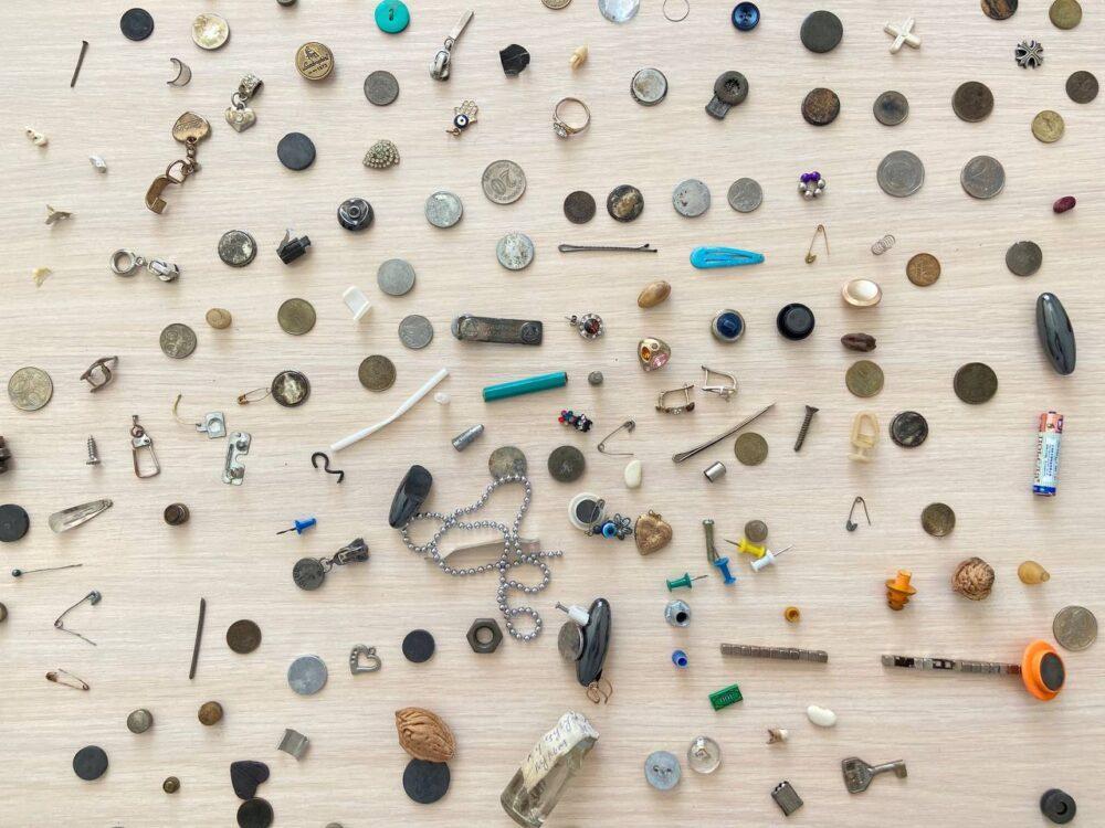 От монет до бриллиантов: что чаще всего проглатывают казахстанские дети