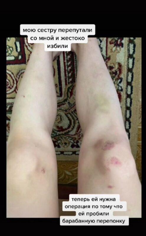 Избили сестру из-за видео в TikTok: делом занялась полиция Караганды 3