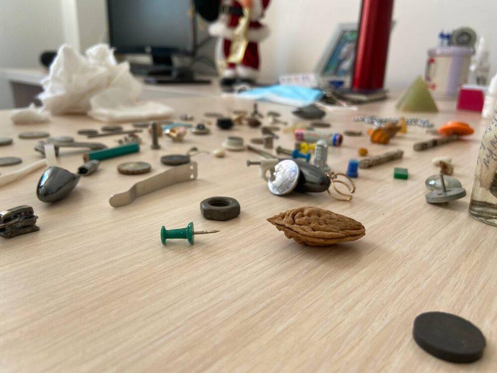 От монет до бриллиантов: что чаще всего проглатывают казахстанские дети 3